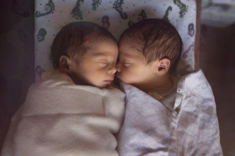 TO pierwszy taki poród na świecie