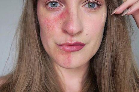 Jak się żyje z trądzikiem różowatym? Kobiety pokazują na Instagramie zdjęcia bez filtra