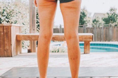 Ten rodzaj cellulitu nie znika pomimo ćwiczeń i diety! Jak sobie z nim poradzić?