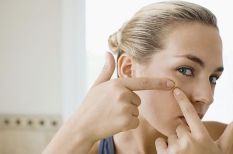 4 mity o trądziku, w które wierzy lub wierzyła większość z nas