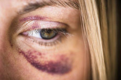 Sam na sam z oprawcą - pomoc dla ofiar przemocy domowej podczas kwarantanny