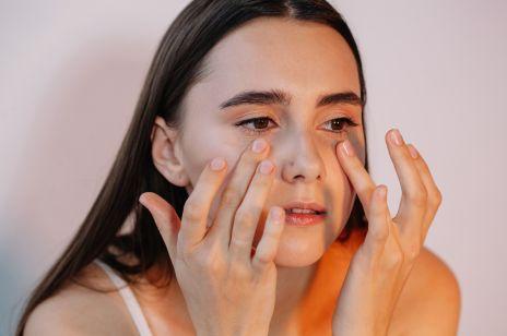 Worki pod oczami – dlaczego powstają jak je zlikwidować? Znamy sprawdzone sposoby