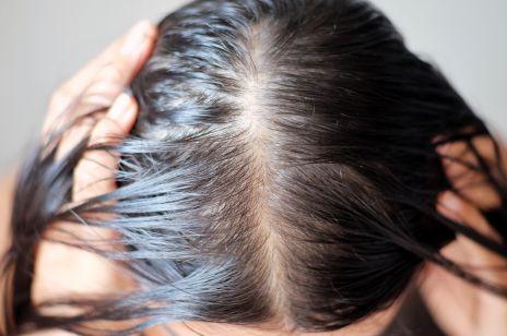 """""""Pękanie włosów"""" i """"trzaskanie skóry głowy"""": Niepokojący trend na TikToku, który podbija Internet!"""