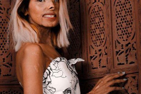 Kiedy miała 2 miesiące, ojciec oblał ją kwasem solnym, dziś robi karierę modelki. Kim jest Anmol Rodriguez?