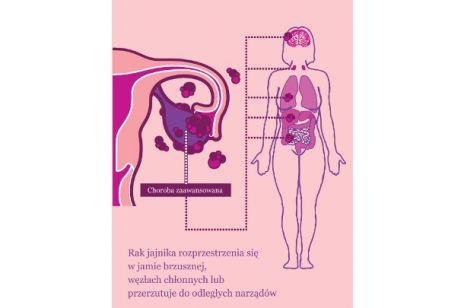Rak jajnika – cichy zabójca kobiet