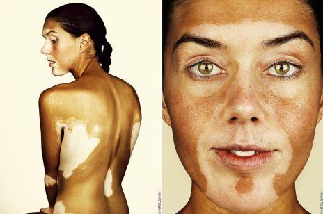 "Brock Elbank ""Vitiligo"" projekt fotograficzny"