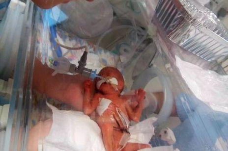 Miała mieć ABORCJĘ - lekarze uratowali dziecko!