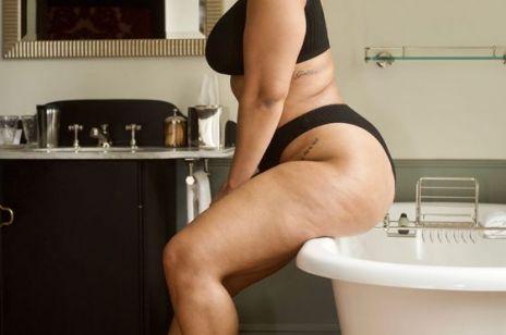 Czy cellulit może być piękny? Te zdjęcia mówią same za siebie!
