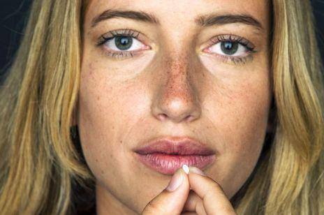 Jak antykoncepcja wpływa na nasz wygląd?