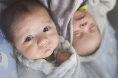 Na świat przyszły bliźnięta seskwizygotyczne. To drugi taki przypadek w historii medycyny
