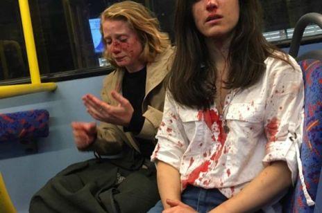Para kobiet pobita w autobusie: odmówiły całowania się przy innych
