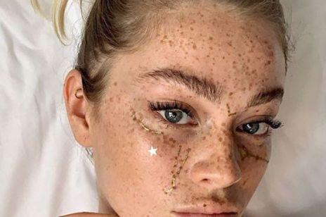 Czy wiesz, co zamieszkuje Twoją skórę? Sprawdź, jak utrzymać zdrowy mikrobiom!