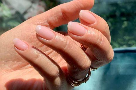 Białe plamki na paznokciach – jakie są przyczyny? Co z nimi zrobić?
