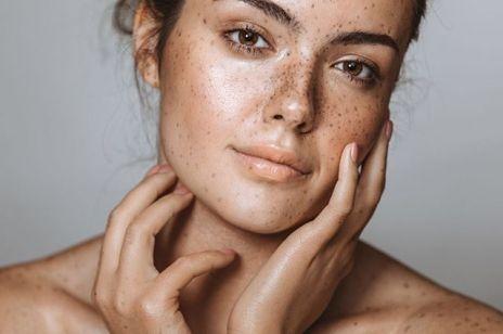 Jak usunąć przebarwienia?