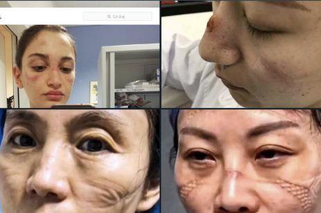 Najpiękniejsze kobiety świata: zdjęcia lekarek i pielęgniarek po wielogodzinnych dyżurach w szpitalach na świecie