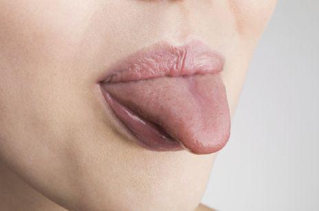 Biały język