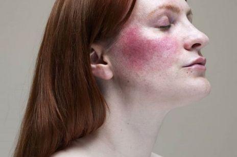 Jak uspokoić zaczerwienioną skórę? - 5 sposobów na rumień i pajączki