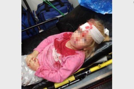 Dziewczyna została ranna podczas protestów