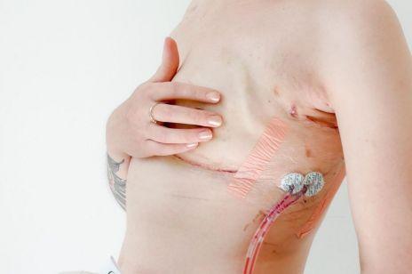Instagram blokuje zdjęcia piersi po mastektomii