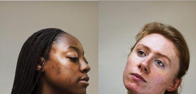 Skin positivity: niedoskonałości są piękne!