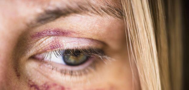 Codziennie na świecie ginie ponad 100 kobiet: przerażające statystki