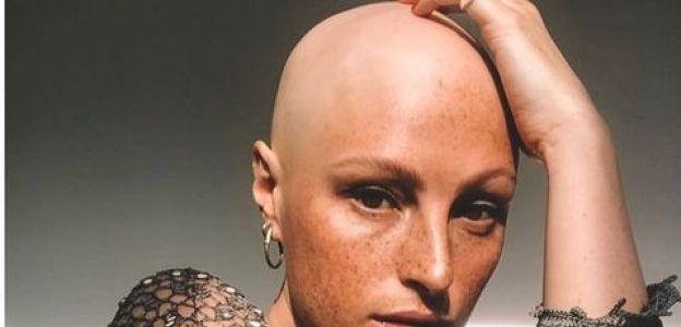 Amber Jean Rowan cierpi na całkowite łysienie. Jej makijaż to mistrzostwo świata!