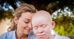 Martyna Wojciechowska poruszyła fanów: pokazała zdjęcie dziecka chorego na nowotwór
