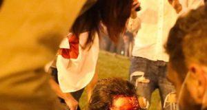 Białoruś: Ranni protestujący po starciach z milicją. Zobaczcie czym grozi utrata demokracji - szokujące zdjęcia