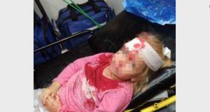 Białoruś. 5-letnia dziewczynka  zalana krwią. O mało nie straciła życia w protestach