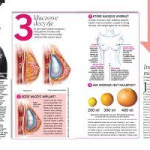 implanty5