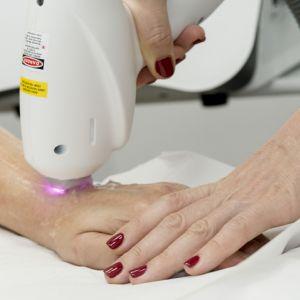 Laserowe usuwanie przebarwień