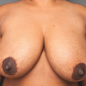breasts-40-year-old-008