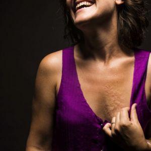 GALERIA - kobiety pokazują swoje blizny!