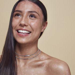 Kobiety z problemami skórnymi w odważnej kampanii Missguided