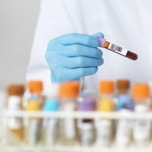 Badania krwi i moczu
