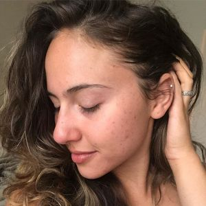 Kobiety pokazują blizny potrądzikowe na Instagramie