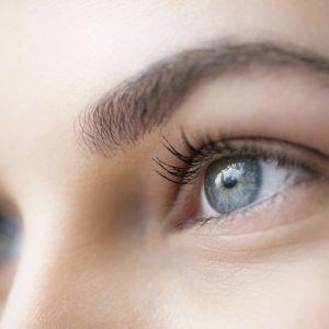 Zmiany na skórze spowodowane stresem - cienie pod oczami