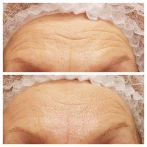 Kwas trójchlorooctowy: peeling TCA usuwa zmarszczki, blizny i przebarwienia