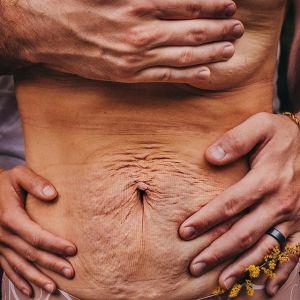 Ten mężczyzna szczerze wyznał, co myśli o ciele kobiety po porodzie