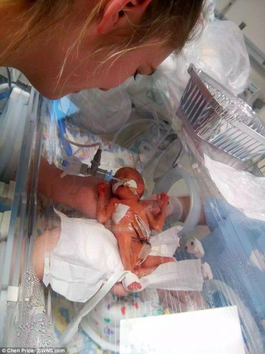 Dziecko urodziło się w 23. tygodniu ciąży