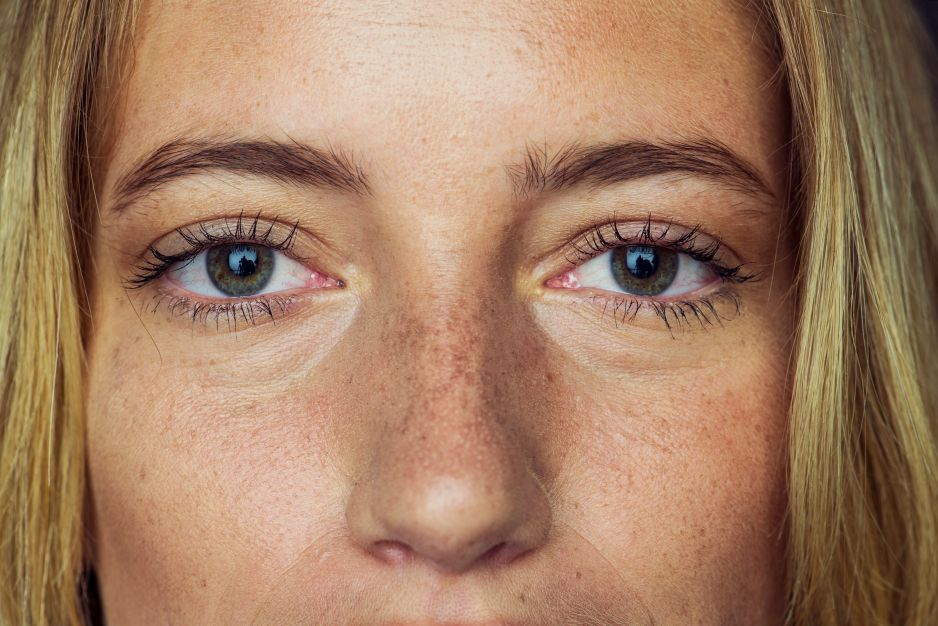 Przebarwienia skóry