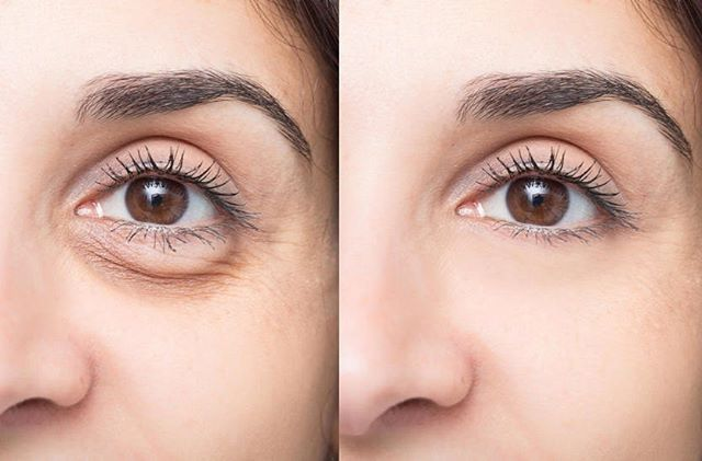 Znalezione obrazy dla zapytania: mezoterapia igłowa przed i po