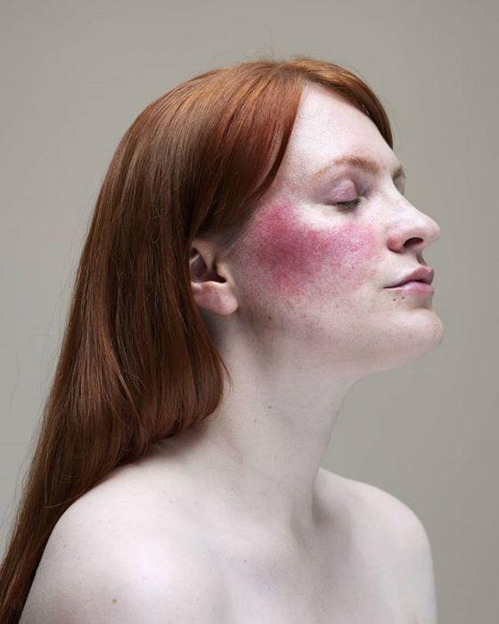 Zaczerwieniona skóra - sposoby na rumień i pajączki