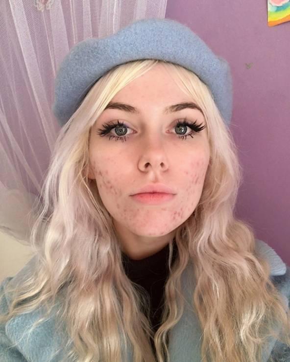 Kobiety pokazują blizny potrądzikowe na Instagramie - Czy można czuć się pięknie z bliznami po trądziku? One udowadniają, że tak!